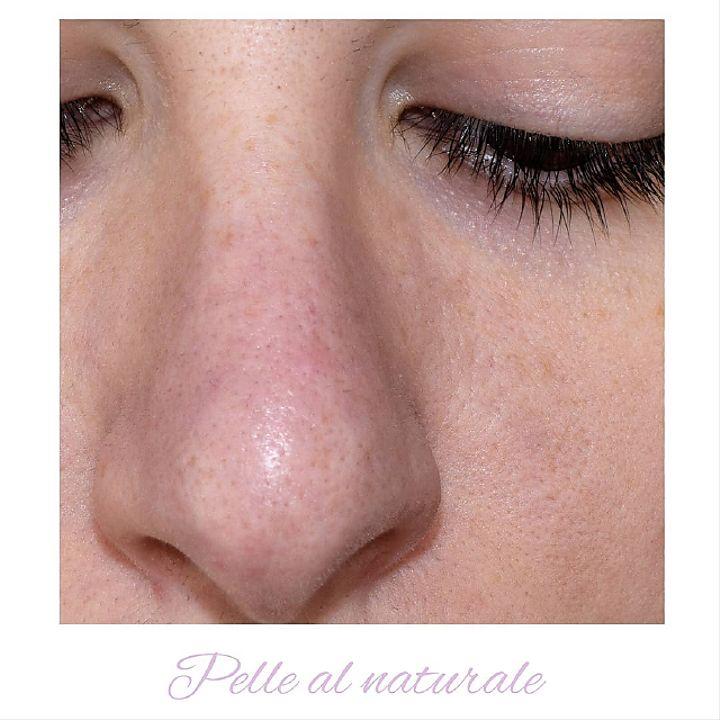 Pelle naturale del naso con i pori dilatati prima dell'applicazione di Muse