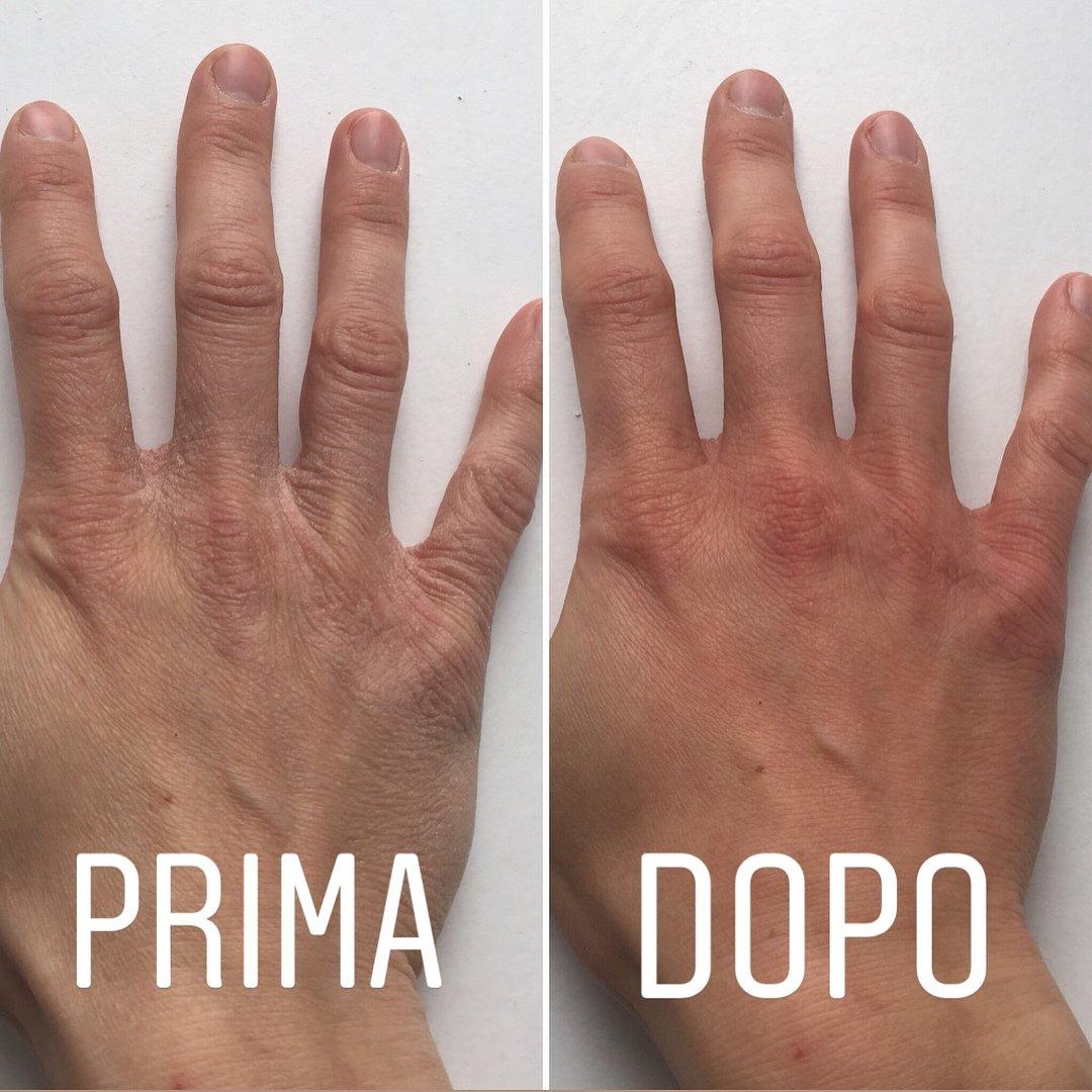 Risultato dell'azione della crema mani alla bava di lumaca Moon